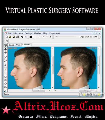 Virtual Plastic Surgery Software 2009 v1.0 Portable.